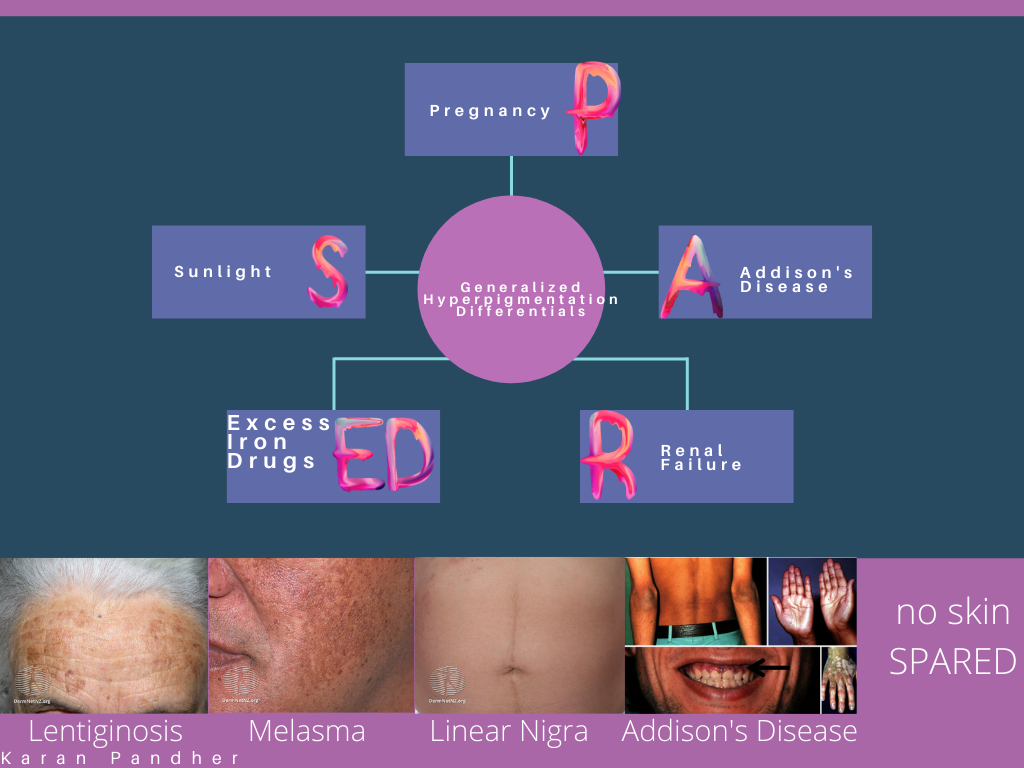 Generalized Hyperpigmentation Differentials