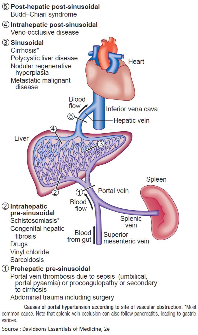 pre sinusoidalis schistosomiasis