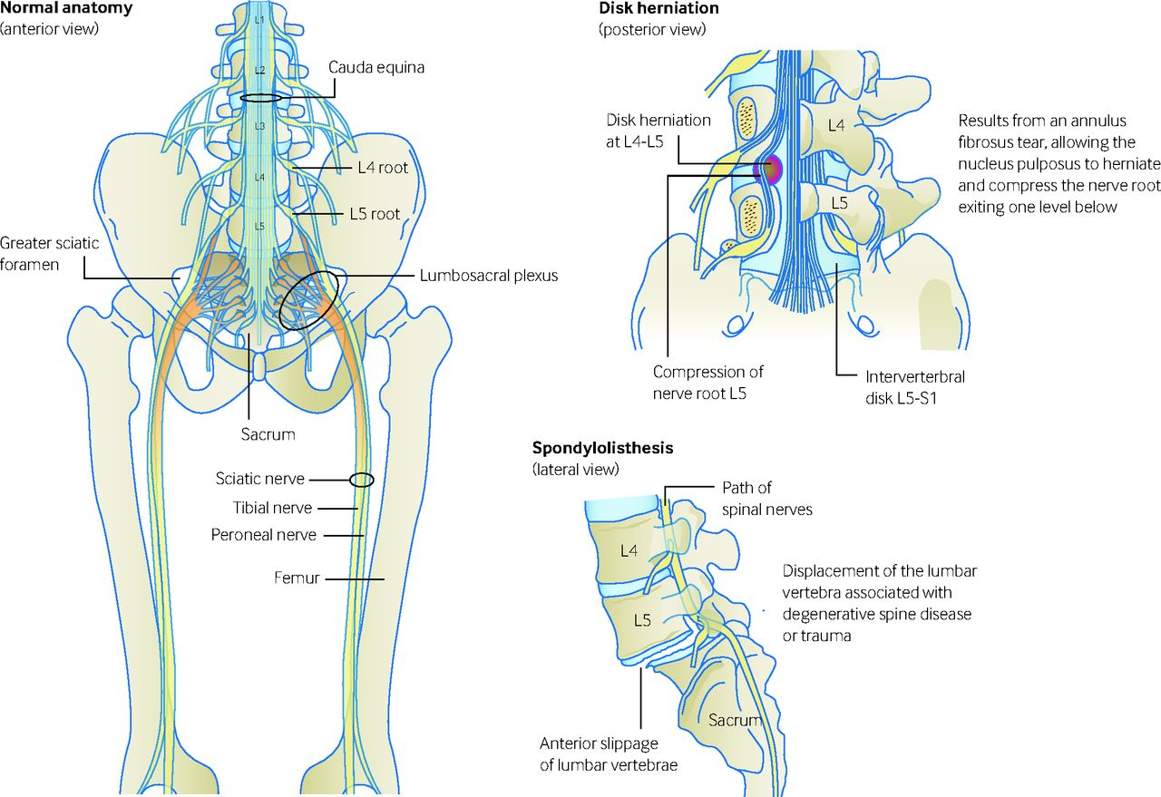Grepmed - Common causes of sciatica. Disc herniation is the ...