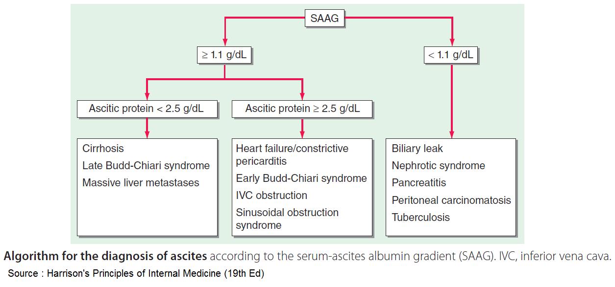 Diagnosis of ascites according to the serum ascites albumin gradient (SAAG) SAAG ≥ 1.1:  - Ascitic protein