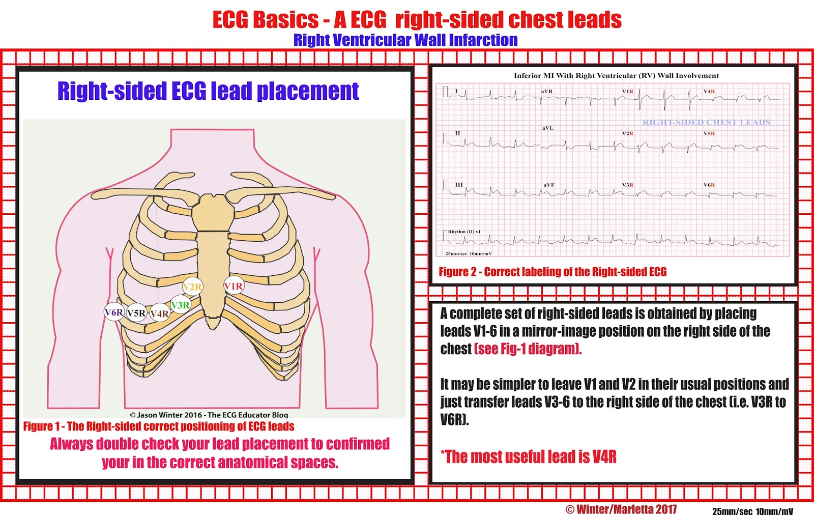 Right Sided ECG Lead Placement #EM #IM #Cardiology #EKG #Lead #Placement #RightSided #LeadPlacement #ECGEducator
