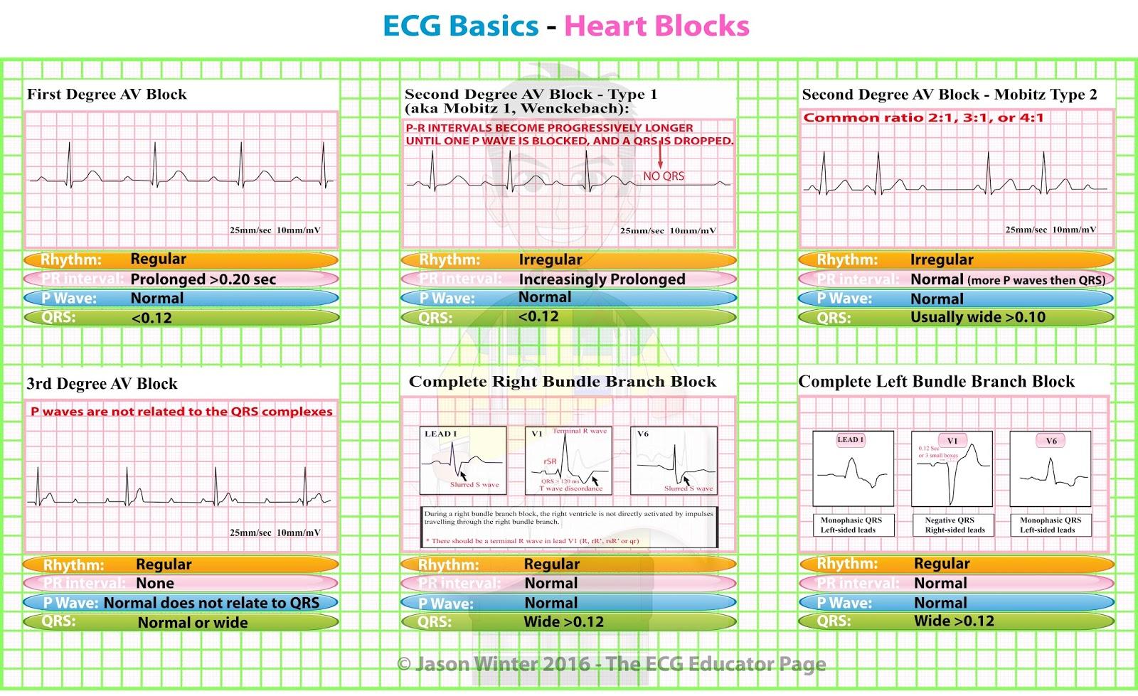 Ecg Basics Heart Blocks Diagnosis Cardiology Medstudent