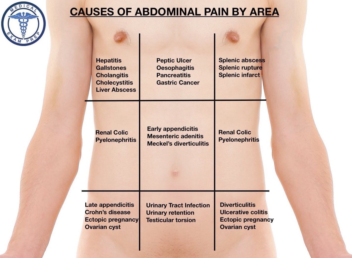 The Differential Diagnosis Of Abdominal Pain By Area Medical Exam