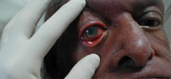 Corneal Ulcer: Marked generalized inflammation related to bacterial infection in this  immunocompromised host. The cornea itself