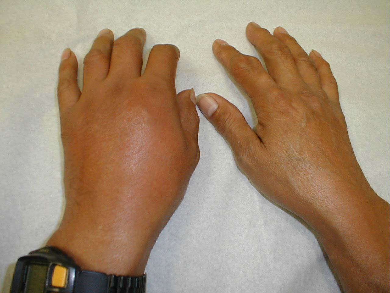 Мазь при артрите лучезапястного сустава фото