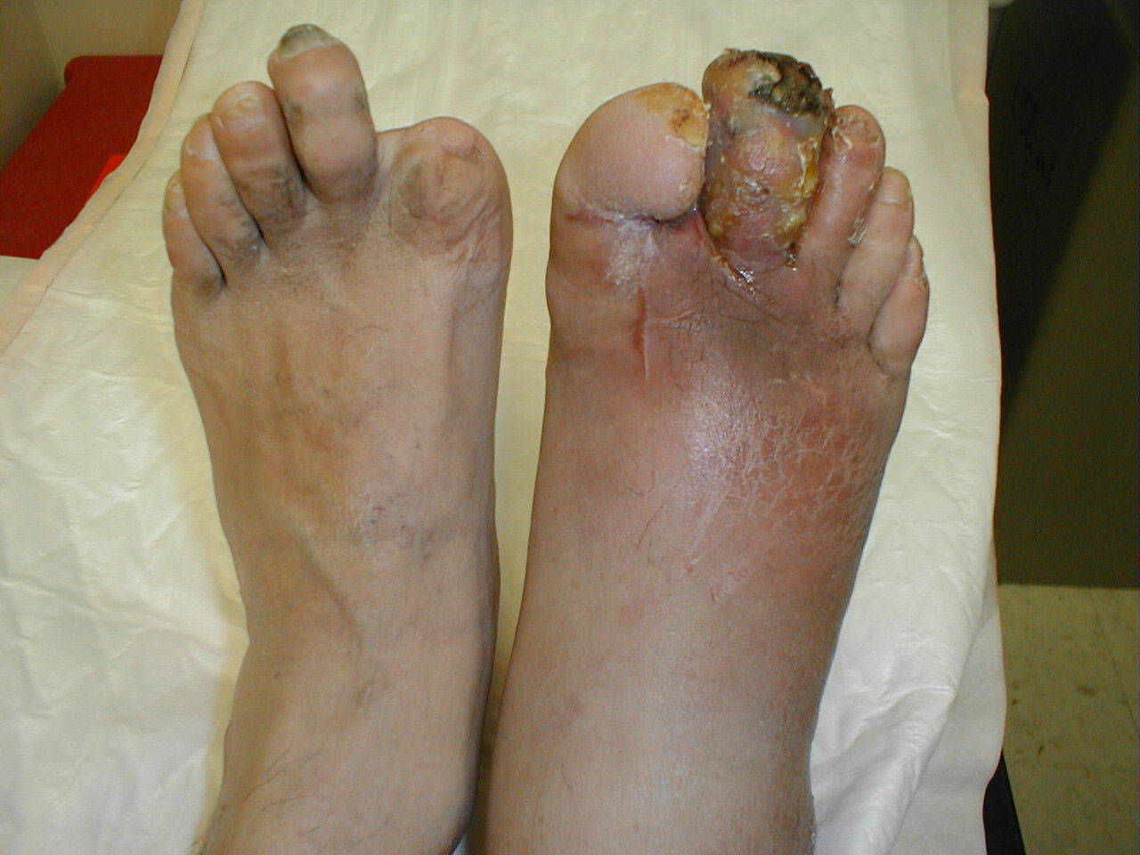 Diabetic Foot Infection Long Standing Poorly Controlled Diabetes Has Led To Peripheral