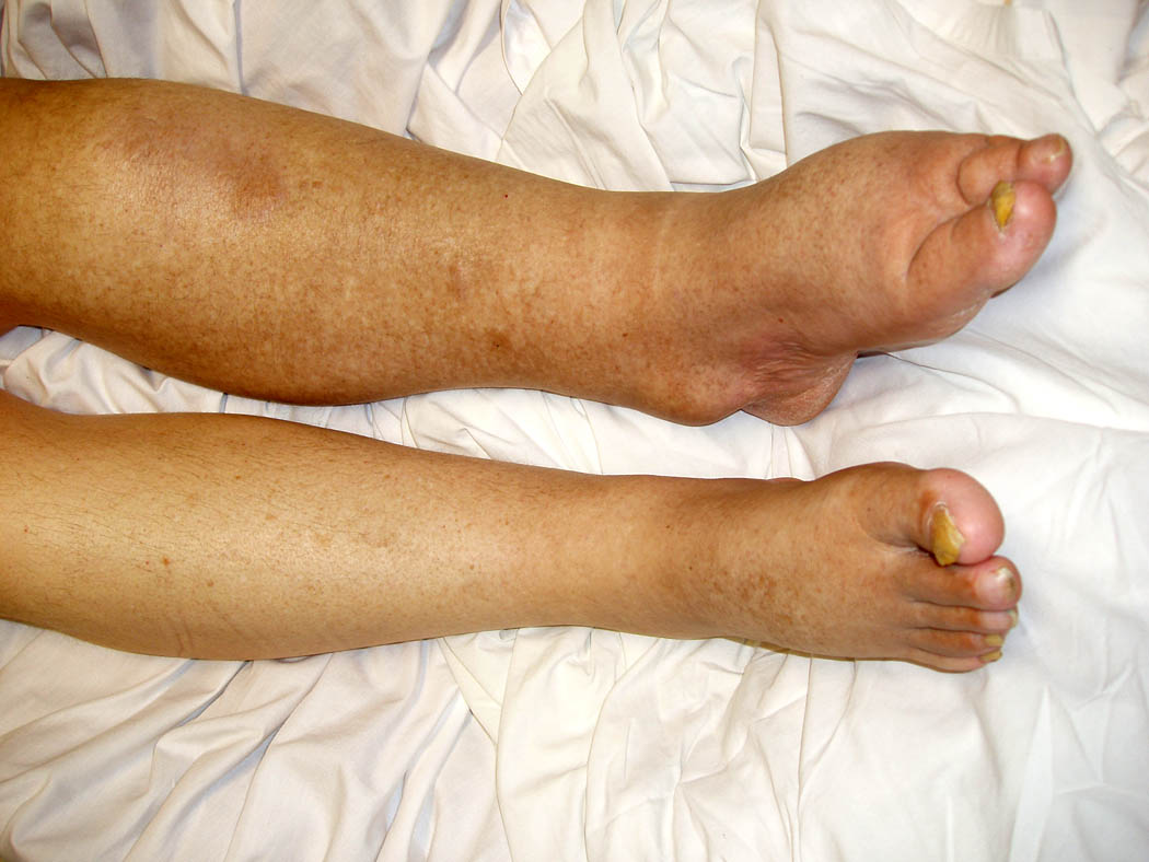 lower left leg swelling