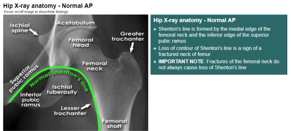 Hip X-ray anatomy - Normal AP <br>- Shenton\'s line is formed by the