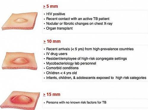 Analize TBC