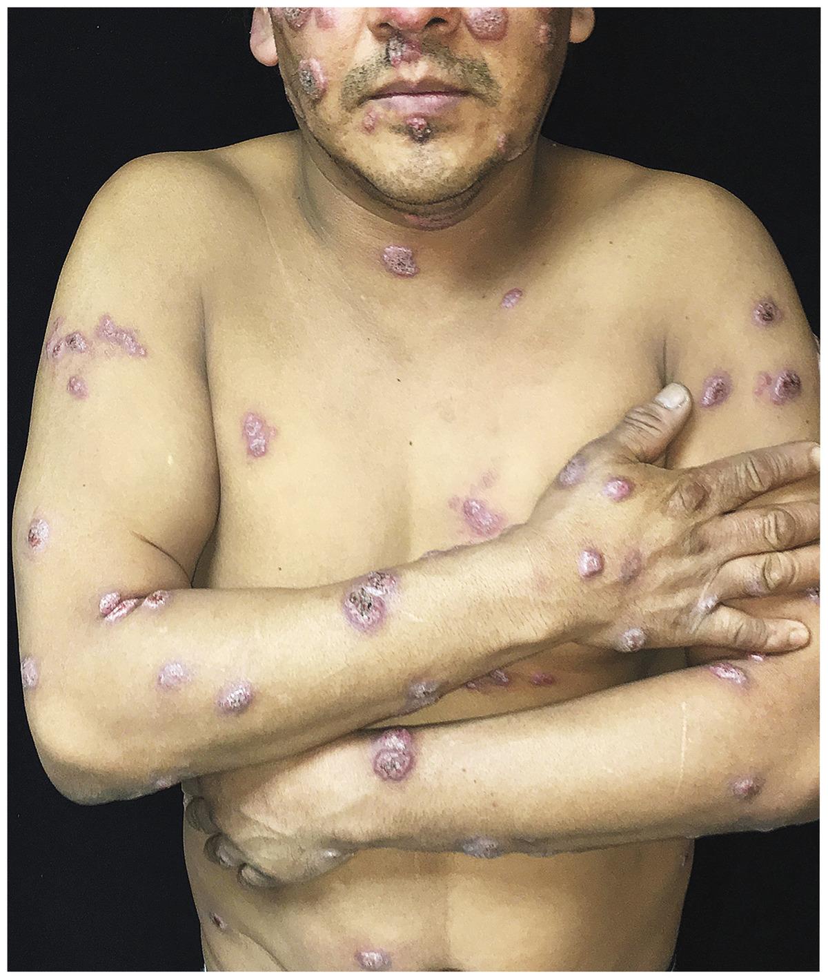 Blastomycosis Skin Lesions