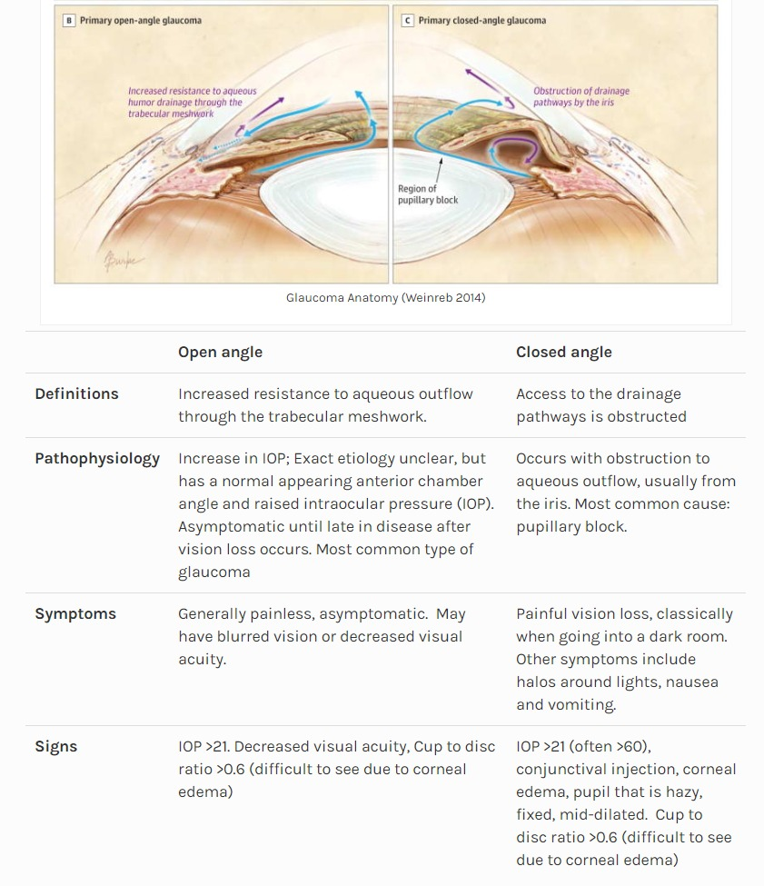 Non-Traumatic Monocular Vision Loss - Open and Closed Angle Glaucoma ...