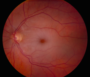 Central Retinal Artery Occlusion (CRAO) <BR>Anatomy: First branch of ...