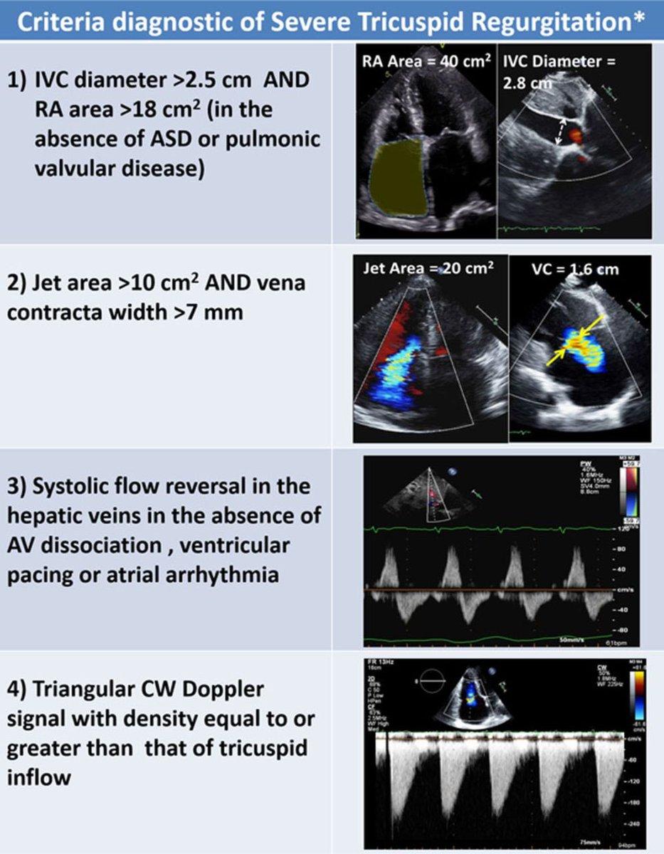 Combination Of Diagnostic Criteria Used To Assess The Severity Tricuspid Regurgitation TR