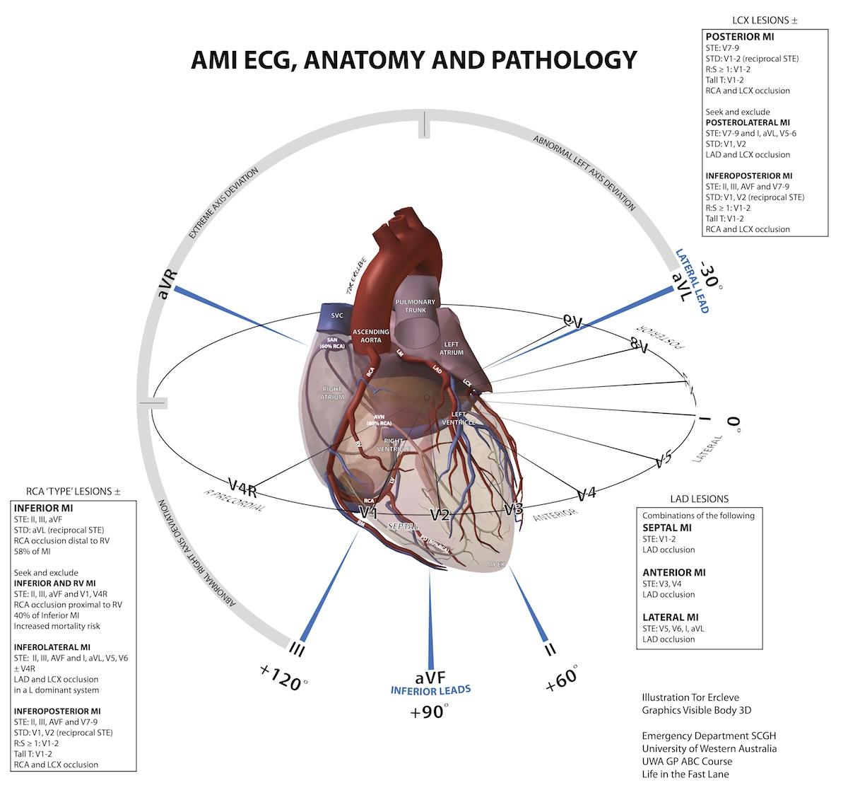 Acute Myocardial Infarction and ECG Geography by Tor Ercleve #Diagnosis #ECG  #EKG #DiagramAcute Myocardial Infarction and ECG Geography by Tor Ercleve #Diagnosis #ECG  #EKG #Diagram