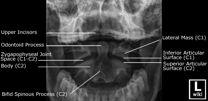 Labeled Cervical Spine Xray Anatomy Odontoid View Br Anatomy