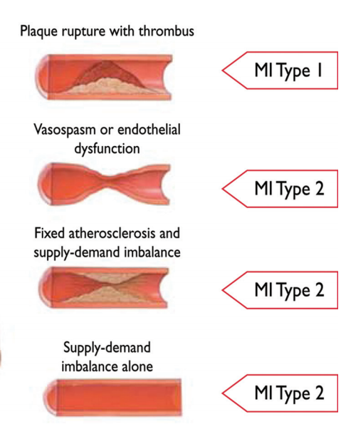 Myocardial Infarction - Definition and Types <BR> <BR>Type 1 - Spontaneous Myocardial Infarction <BR> - Atherosclerotic plaque rupture or
