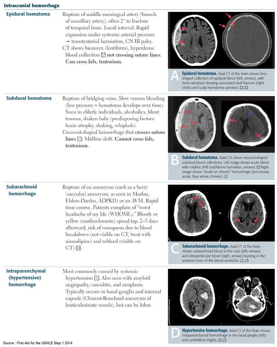 Intracranial Hemorrhages (ICH)  Epidural Hematoma vs Subdural Hematoma vs Subarachnoid Hemorrhage vs Intraparenchymal Hemorrhage  #Diagnosis #Radiology #Comparison #ICH