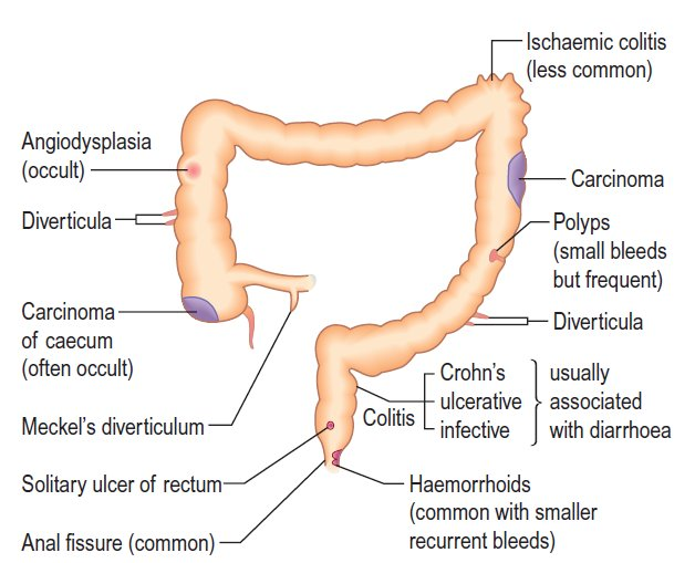 Causes of lower gastrointestinal bleeding - An Illustrated Differential Diagnosis   #Diagnosis #Differential #LowerGI #Bleeding #Diagram #Causes