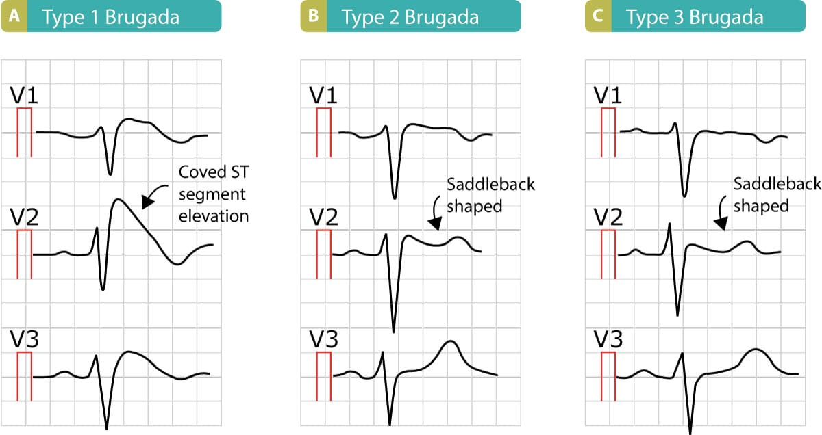Brugada syndrome Types 1, 2 and 3