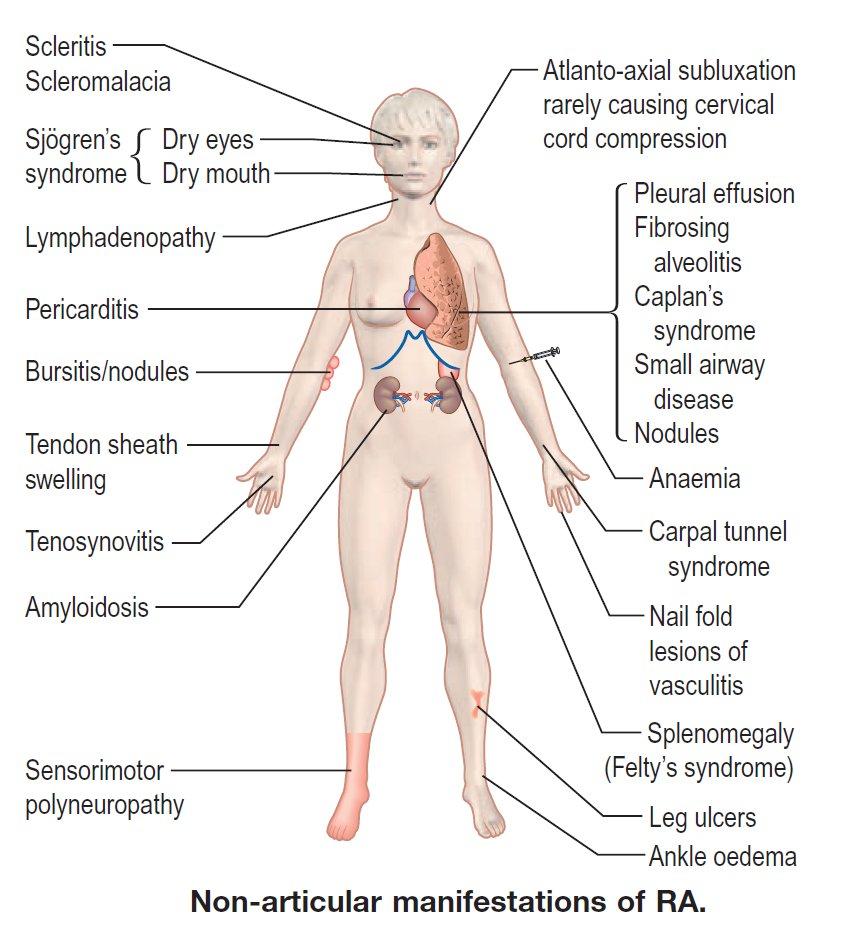 Non Articular Manifestations Of Rheumatoid Arthritis Ra Diagnosis Rheumatology Rheumatoid Arthritis Ra Manifestations Nonarticular