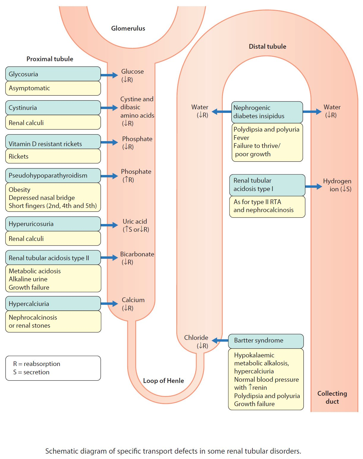 Schematic diagram of specific transport defects in some renal schematic diagram of specific transport defects in some renal tubular disorders br diagnosis ccuart Images