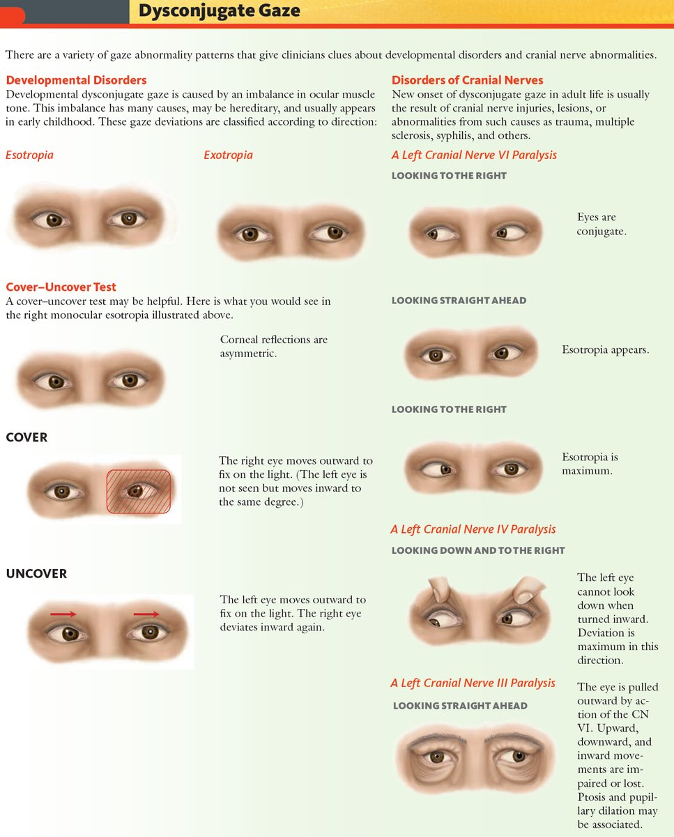 Dysconjugate Gaze - Esotropia, Exotropia and Cranial Nerve Disorders