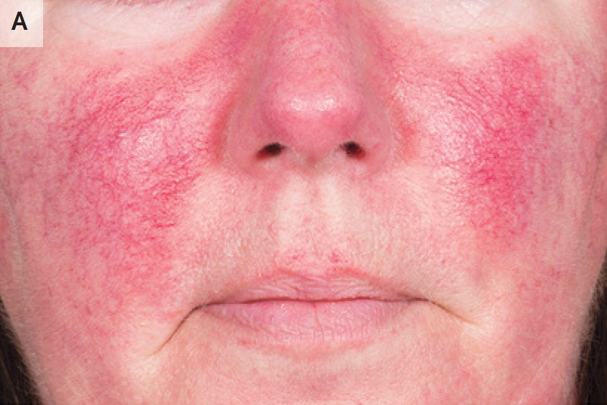 Panel A shows a patient with erythematotelangiectatic