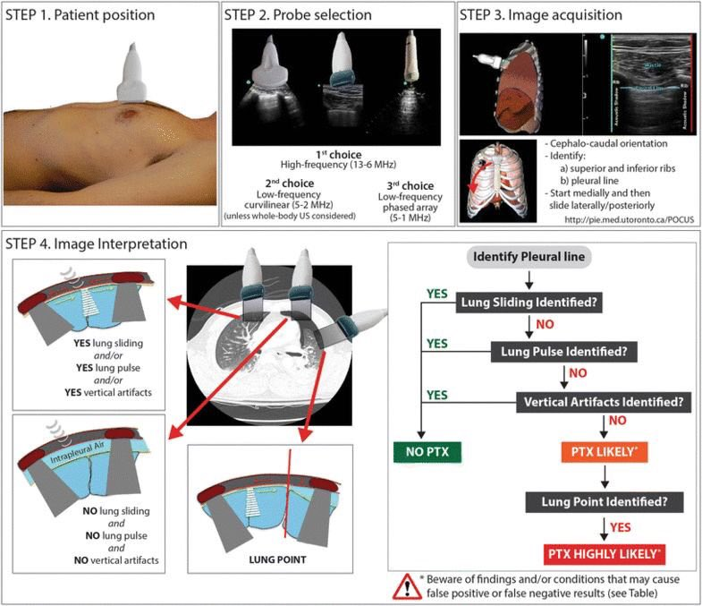 Step By Step Approach For Diagnosis Of Pneumothorax By Lung