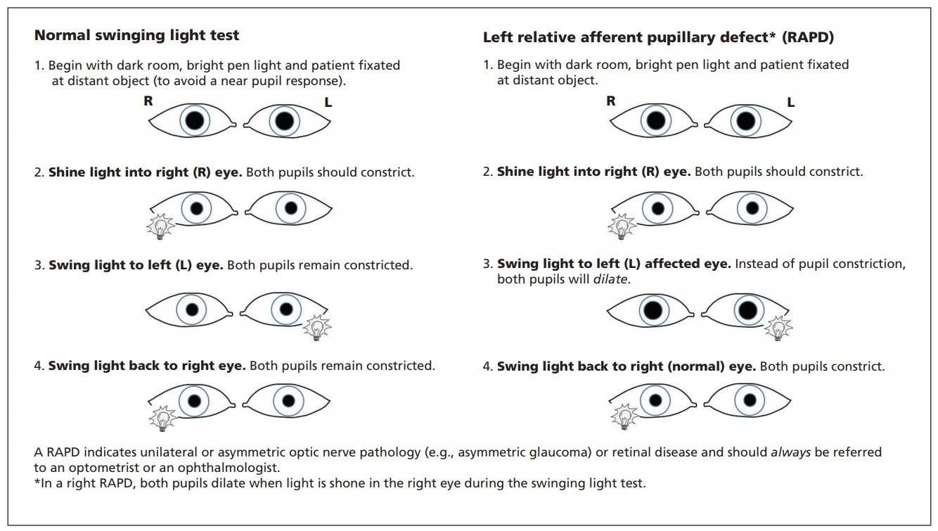 Instructions On How To Perform The Swinging Light Test To Detect A