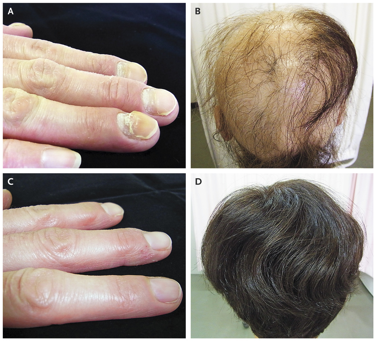 Brittle Nails And Hair Loss In Hypothyroidism Physical