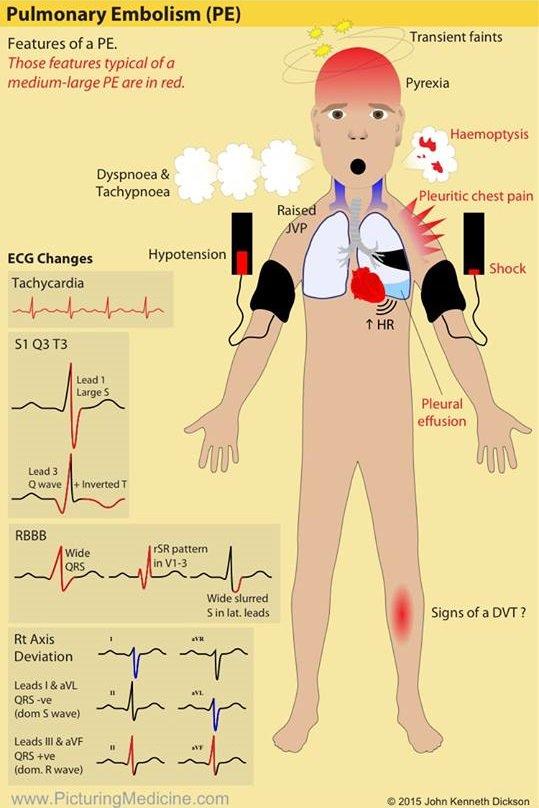 Signs and Symptoms of Pulmonary Embolism (PE) <BR> #Pulmonary #Embolism #Signs #Symptoms #AcutePE #Diagnosis #Presentation