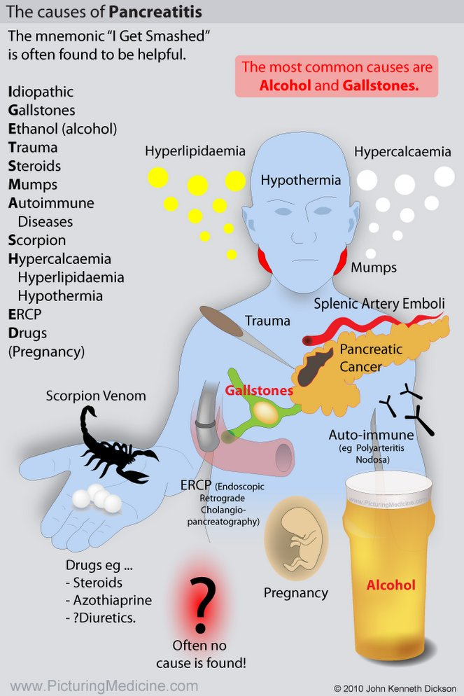 """The causes of Pancreatitis <BR> The mnemonic """"l Get Smashed""""  is often found to be helpful.  <BR> Idiopathic"""