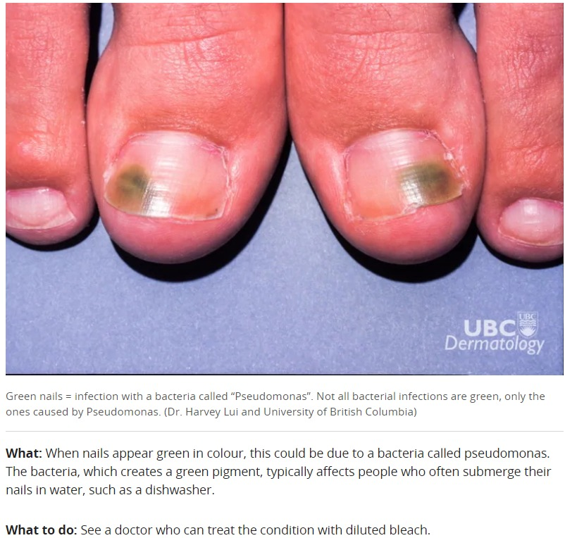 how to treat pseudomonas bacterial infection toenail