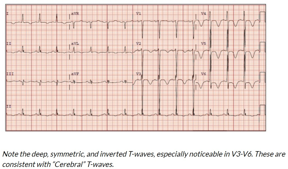 Cerebral T-waves are deep, symmetric, inverted T-waves seen on an ECG in patients with large intracranial