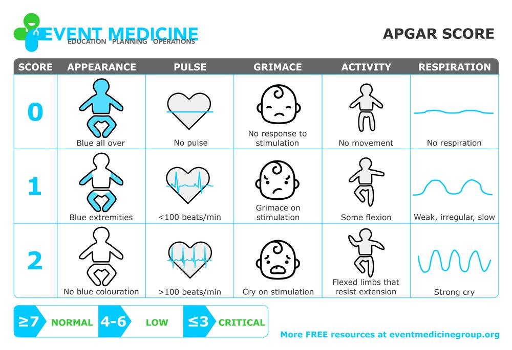 Apgar Score For Newborn Assessment Apgar Score Is Based On
