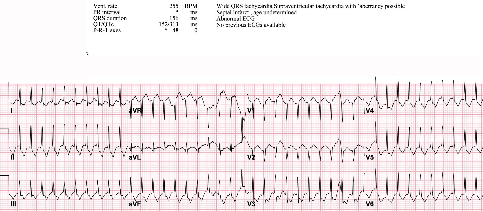 Supraventricular Tachycardia Ekg Here S A Great Ecg Case Of A 50 Year Old Lady Who