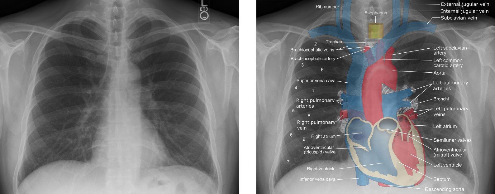 Chest Xray Anatomy Labeled Br Clinical Radiology Anatomy Cxr