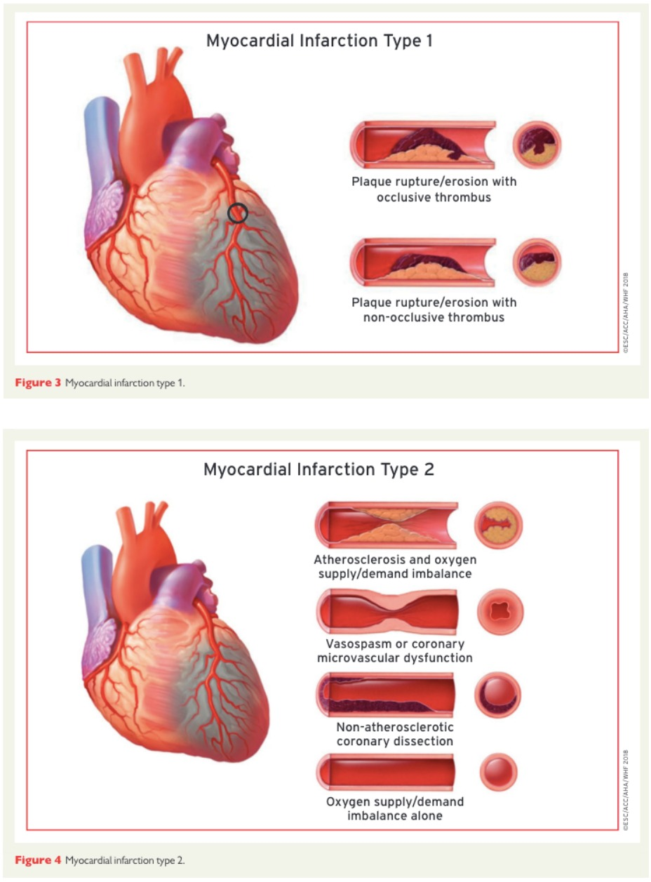 Type 1 vs Type 2 Myocardial Infarction