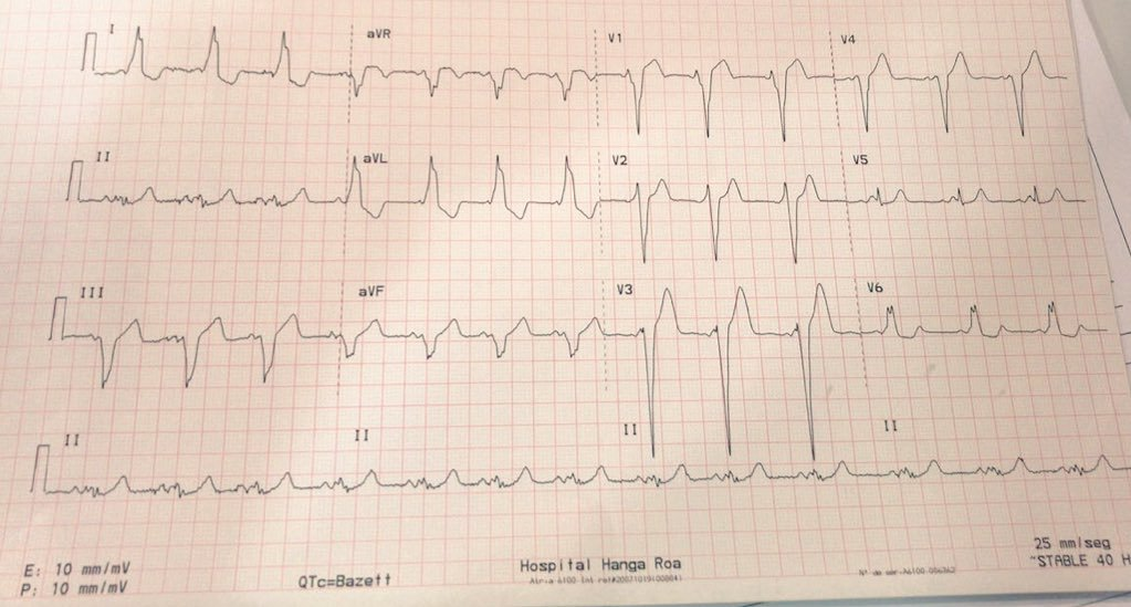 Syncope with WPW and LBBB   28 y/o. Women. Healthy. Pregnant 20 weeks. Syncope w/o other symp.