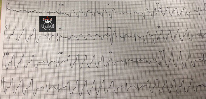 Brugada syndrome with non-sustained VT; sodium channel blocking drugs (e.g. amio, procainamide) can be dangerous here! 