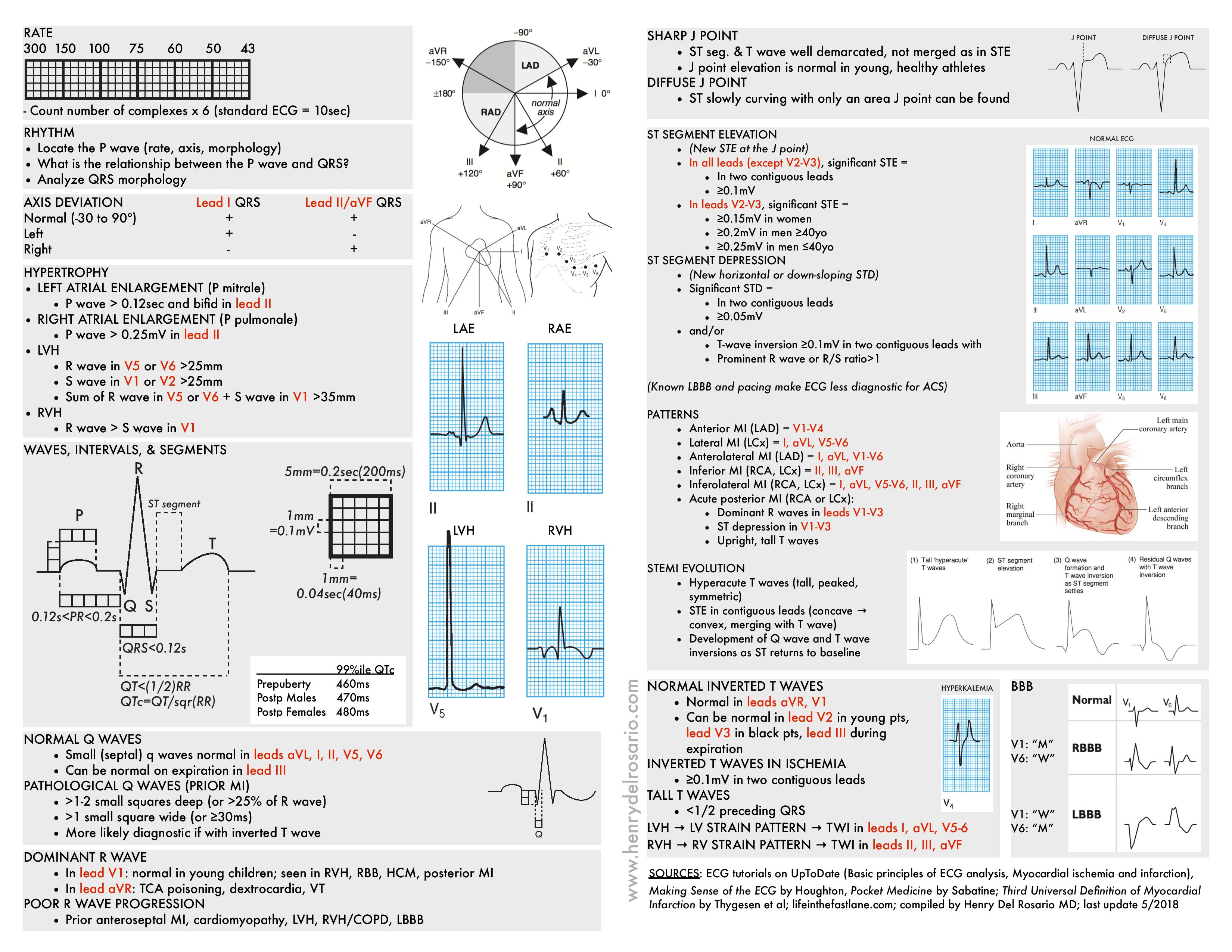 ECG Cheat Sheet <BR> ECG rapid view: It is organized roughly how one would typically read an ECG.