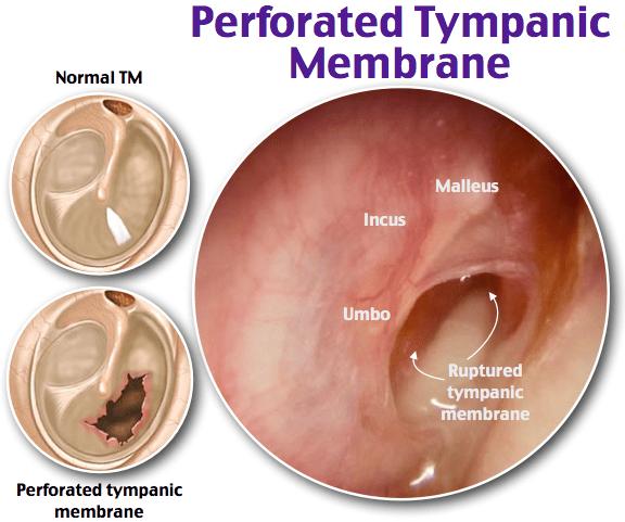 https://img.grepmed.com/uploads/4930/otoscope-membrane-ruptured-clinical-diagnosis-original.png