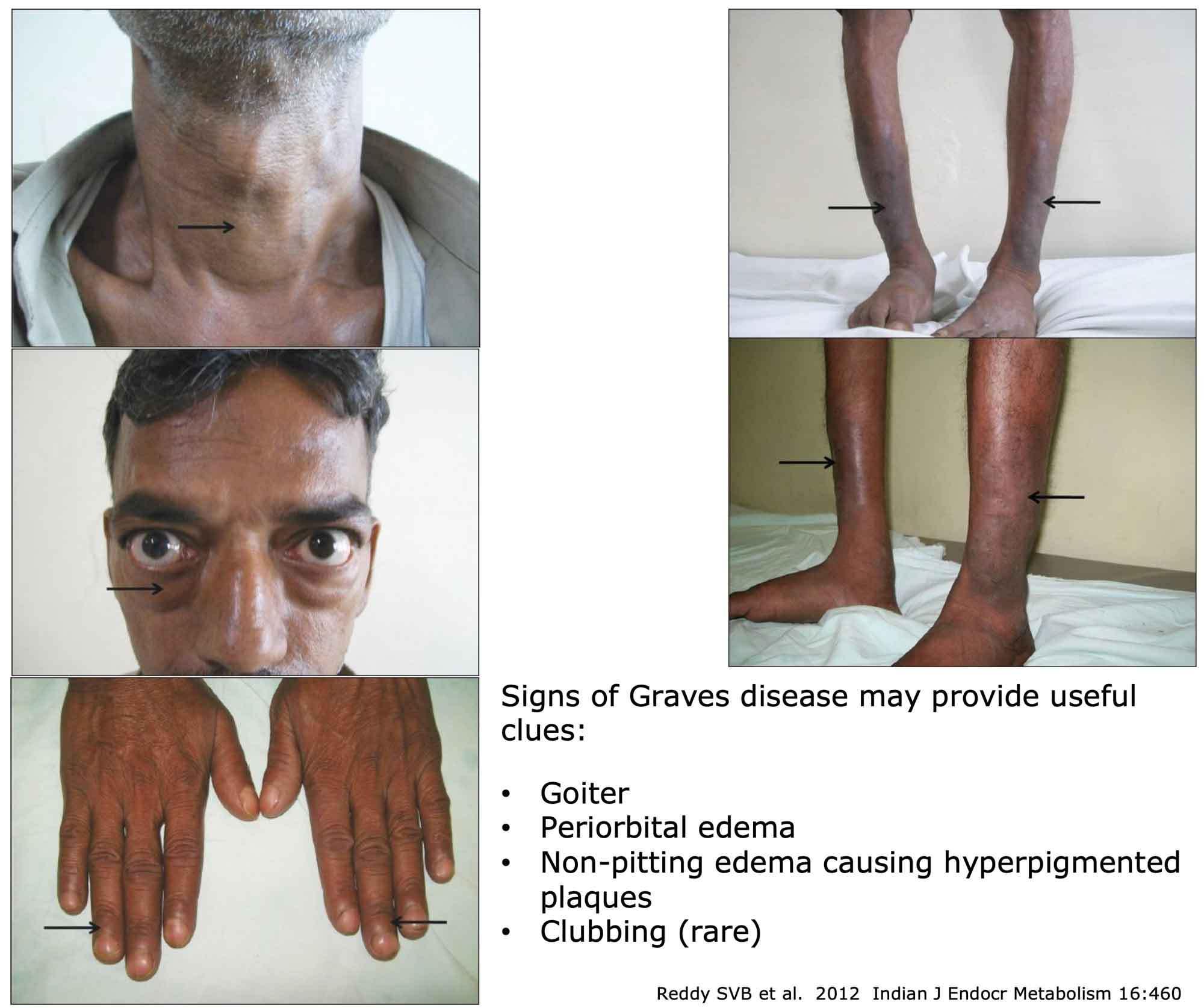 Signs Of Graves Disease Goiter Periorbital Edema Non