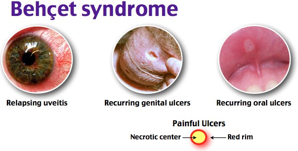 Behcet syndrome (Behcet Disease)