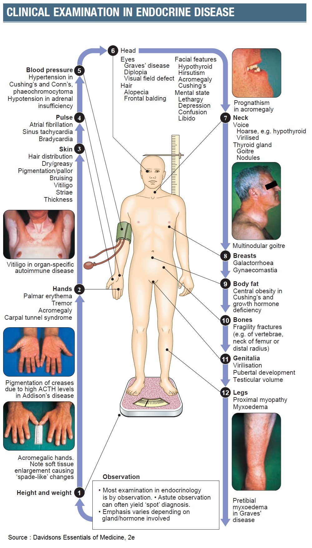 Clinical Examination in Endocrine Diseases #Endocrinology