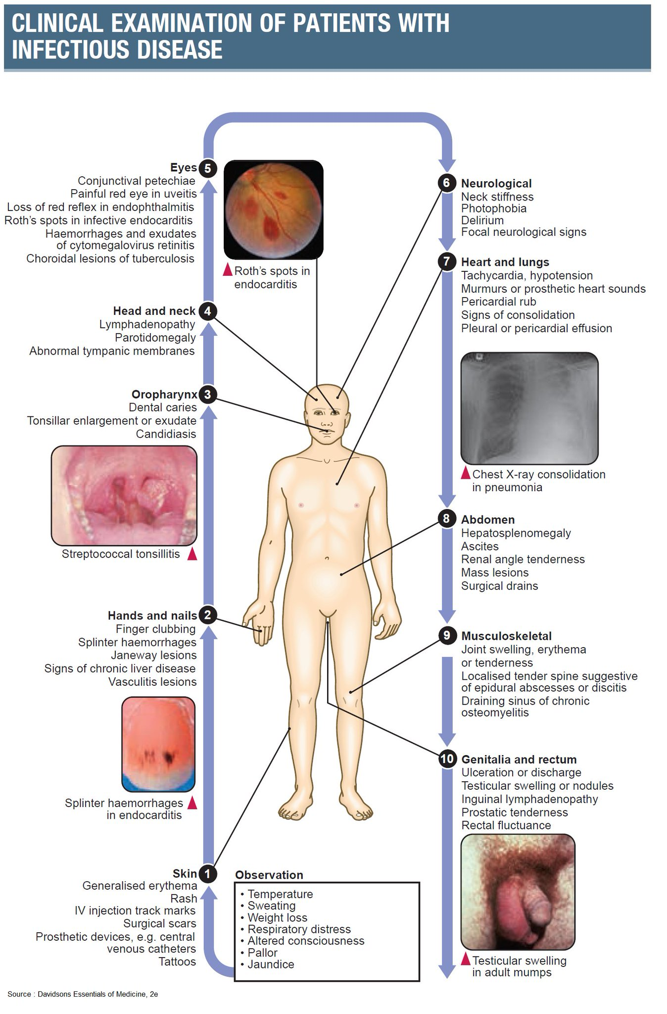 Clinical Examination of Patients With Infectious Disease  #PhysicalExam #Findings #Signs #InfectiousDiseases #Diagnosis