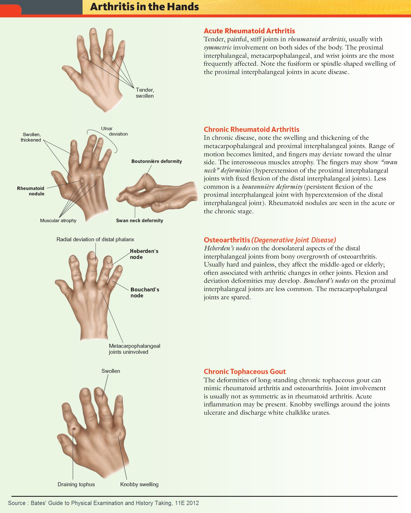 Common Forms of Arthritis in the Hands Acute Rheumatoid