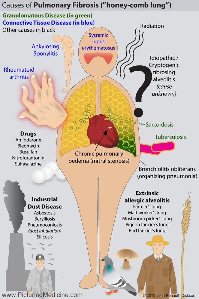 Causes of Pulmonary Fibrosis #Pulmonary #Fibrosis #Causes