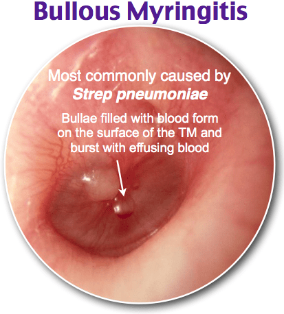 Bullous Myringitis Most commonly caused by Strep pneumoniae Bullae filled  with blood form