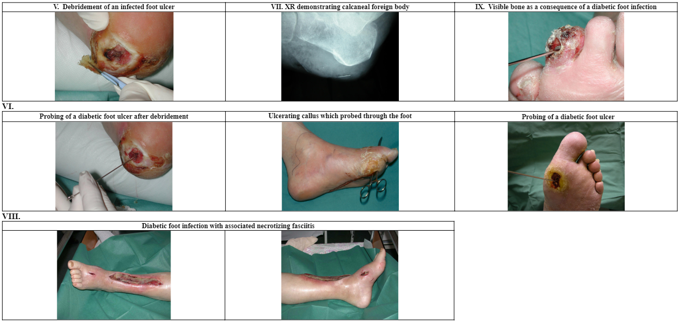 Determining The Severity Of Diabetic Foot Infection Clinical